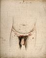 Syphilis; lesions on genitals, groin, abdomen, 1840-70 Wellcome V0010062.jpg