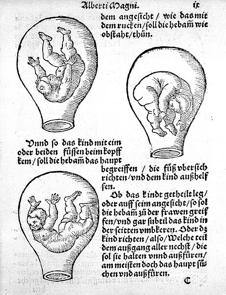 File:Three possible positions of a foetus Wellcome L0003172.jpg