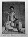 Tropical Diseases, Elephantiasis of legs. Wellcome L0029473.jpg