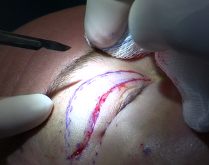 English: The incisions made during an upper ey...