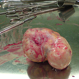 Uterine fibroid 03.jpg