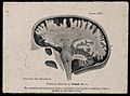 A female brain, sectioned vertically; side view. Photomechan Wellcome V0009502ER.jpg