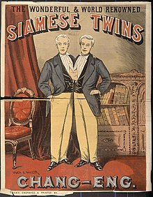 Have faced asian siamese twins firmly convinced