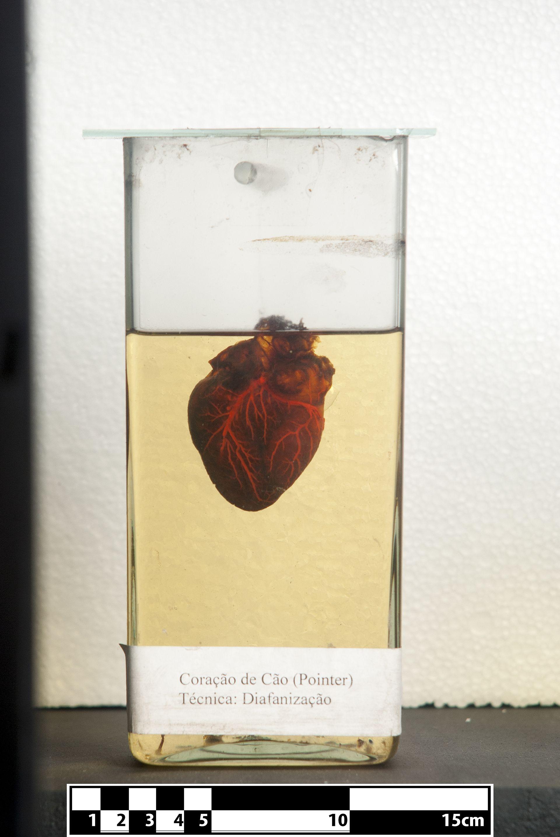 Heart Valve Dysplasia