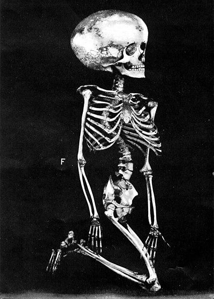 429px-Hydrocephalic skeleton