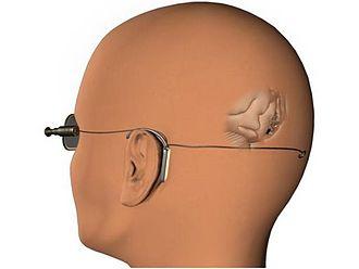 Neurostimulation - The Visual Cortical Implant