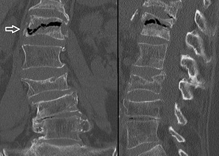 26++ Icd 10 osteoporosis with compression fracture info