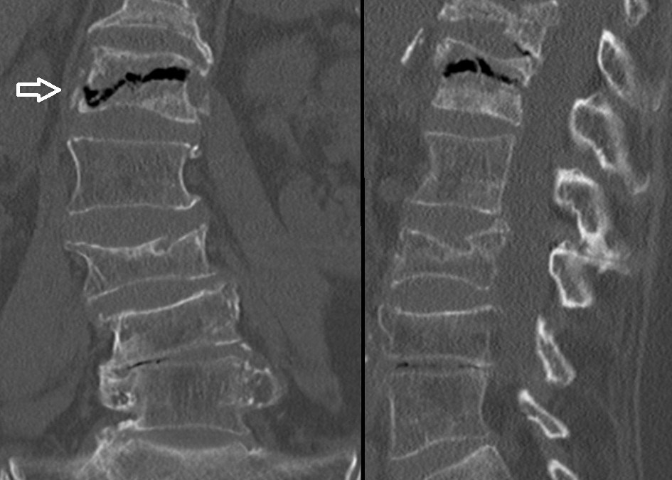 Intravertebral vacuum cleft sign