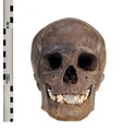 Kranium - Vasamuseet - 10288.tif