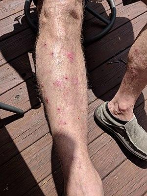 Legs Bullous Pemphigoid.jpg