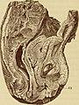 Pathologische Anatomie der weiblichen Unfruchtbarkeit (Sterilität); deren Mechanik und Behandlung (1878) (14578068767).jpg
