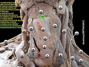Thyrohyoid membrane - Image: Slide 14e