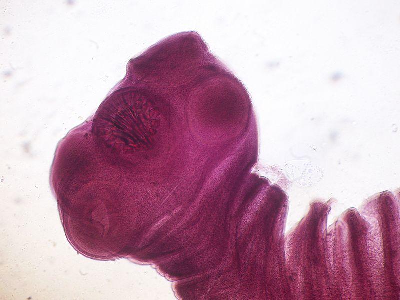 Taenia solium scolex.JPG