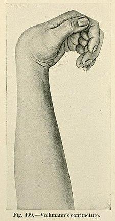 obraz Volkmannovy kontraktury