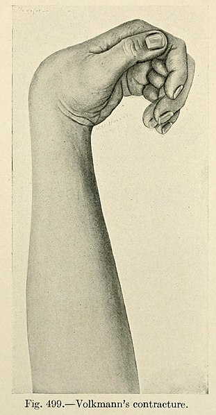 File:The practice of surgery (1910) (14756898256).jpg