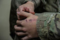 1-502nd Infantryman awarded CIB, Purple Heart 140829-A-DS387-243.jpg