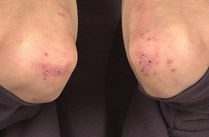 English: Pustules and crusts around the elbows...