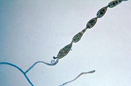Conidia van Alternaria