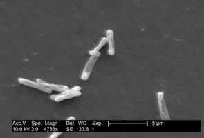 Elektronenmikroskopisches Bild von Clostridium difficile