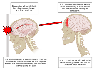 Concussions in rugby union