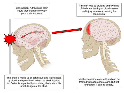 Concussions cause long term effects lasting decades concussion anatomy ccuart Images