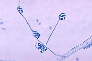 Acremonium strictum - Conidia and conidiophores of the fungus Acremonium falciforme PHIL 4168 lores