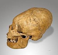 人工颅骨变形