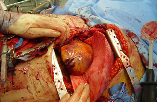 Thoracotomy incision into the pleural space of the chest