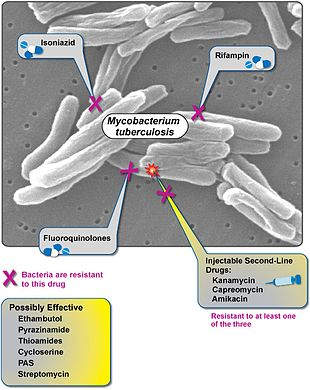 Extensively Drug Resistant Tuberculosis Wikipedia