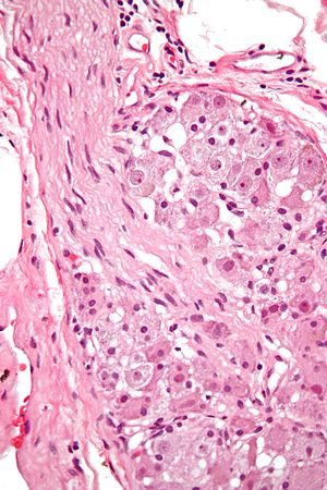 Ganglion cell - Ganglion cells within a ganglion. H&E stain.