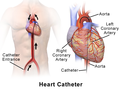 Heart Catheter.png