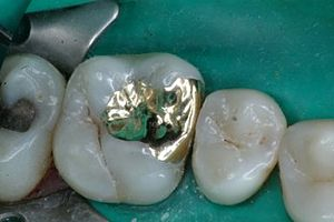 Glossary of dentistry - Image: MO inlay of 3