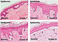 Micrographs of grades of skin graft-versus-host-disease.jpg
