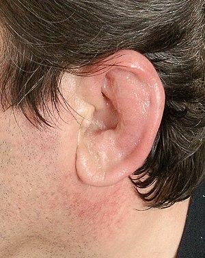 Trwat Ear Infection In Cats