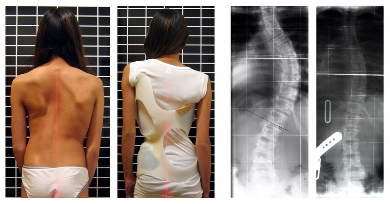 File:Scoliosis patient in cheneau brace correcting from 56 to 27 deg.png