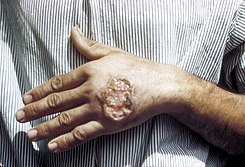 Skin ulcer due to leishmaniasis, hand of Central American adult 3MG0037 lores.jpg