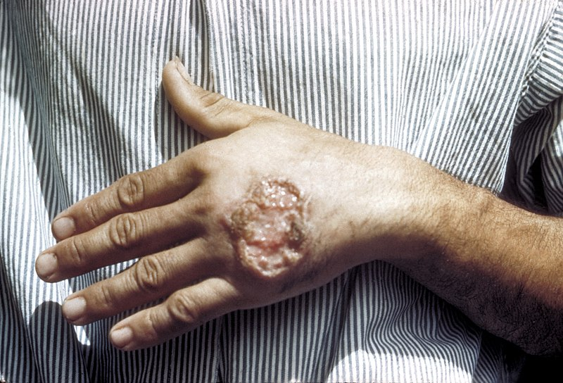 Датотека:Skin ulcer due to leishmaniasis, hand of Central American adult 3MG0037 lores.jpg