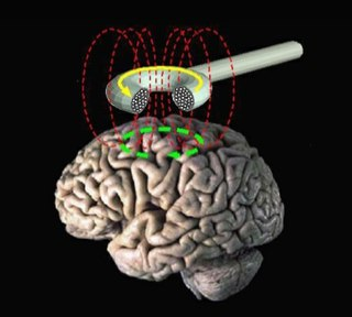 form of brain stimulation using magnetic fields