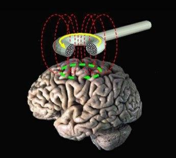 345px-Transcranial_magnetic_stimulation.jpg