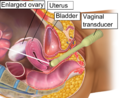 Vaginal ultrasonography in OHSS - coronal.png