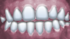 Virtual teeth smile.png