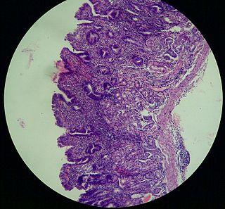 Atrophic gastritis Human disease