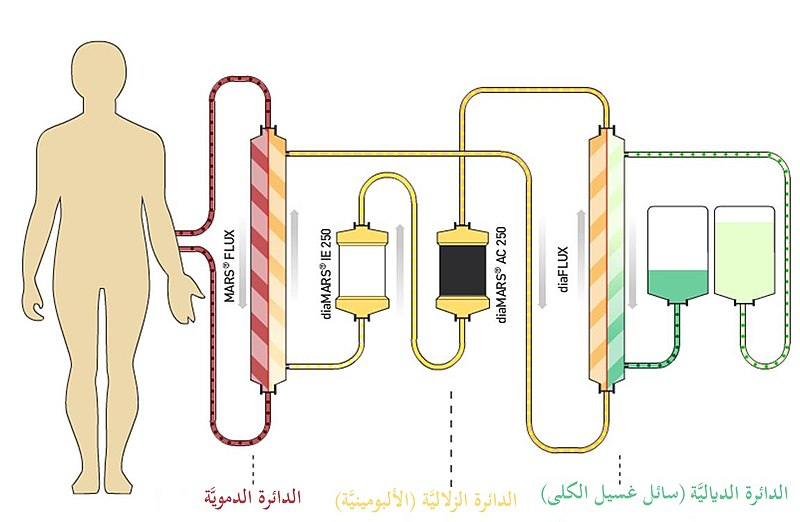 File:Albumin dialysis circuit-ar.jpg