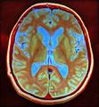 Brain MRI 103618 rgbca.png