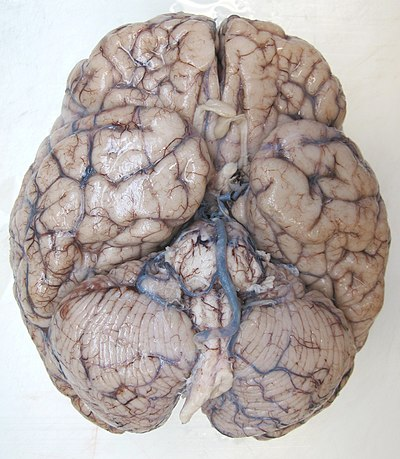 Brain autopsy bottom view.jpg