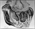 Cardiac infarct from a case. Wellcome L0004947.jpg