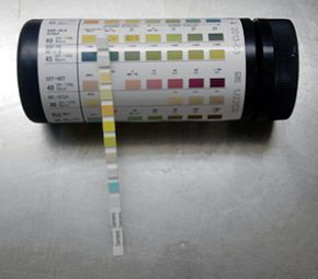 Urine analysis strip test