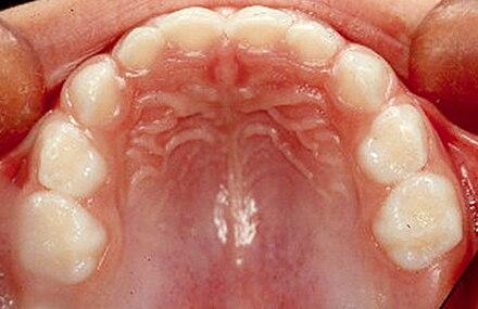 Dentición decidua - Wikiwand