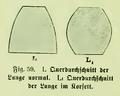 Die Frau als Hausärztin (1911) 059 Querschnitt der Lunge ohne und im Korsett.png