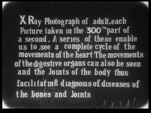 Fail:Dr. MacIntyre's X-Ray film.webm